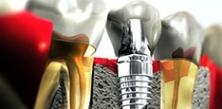 implant236
